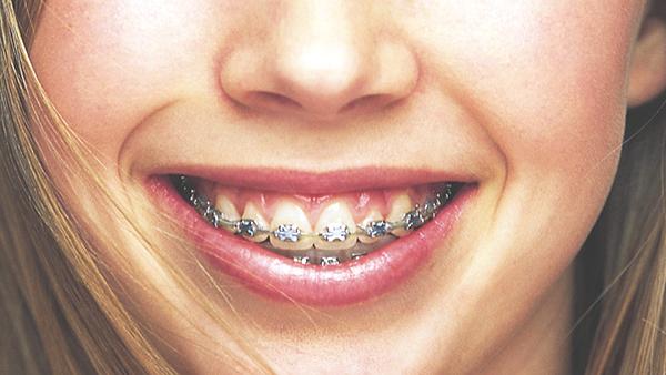 orthodontie ostéopathie dent dentiste hadrien corjon ostéopathe guilvinec finistère 29